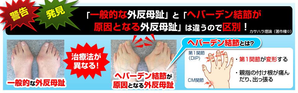 一般的な外反母趾とヘバーデンが原因となる外反母趾の違い